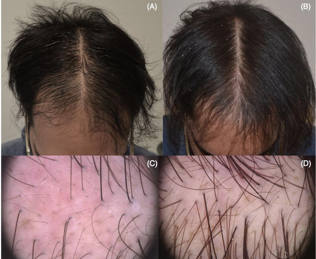microneedling avant après calvitie homme repousse cheveux