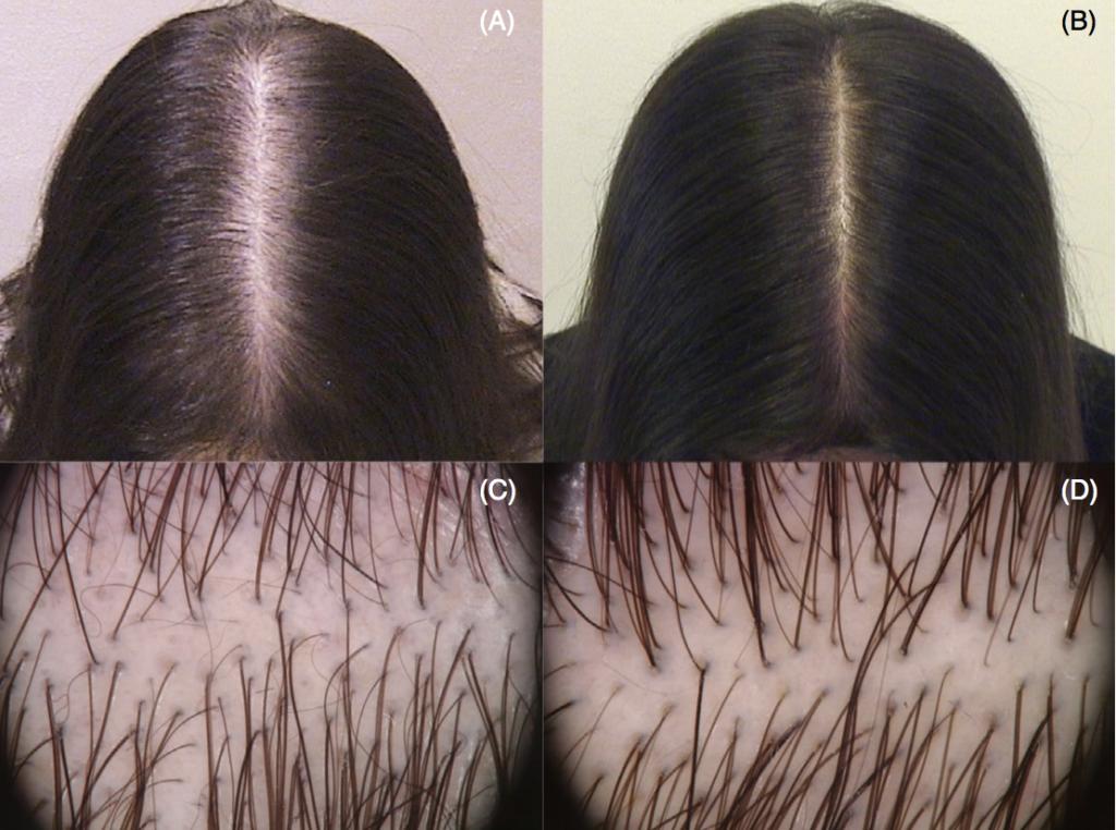 alopécie femme repousse cheveux microneedling avant après
