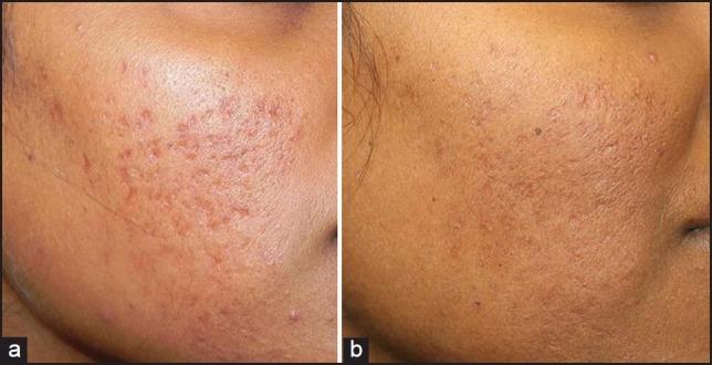 Microneedling avant après cicatrices d'acné